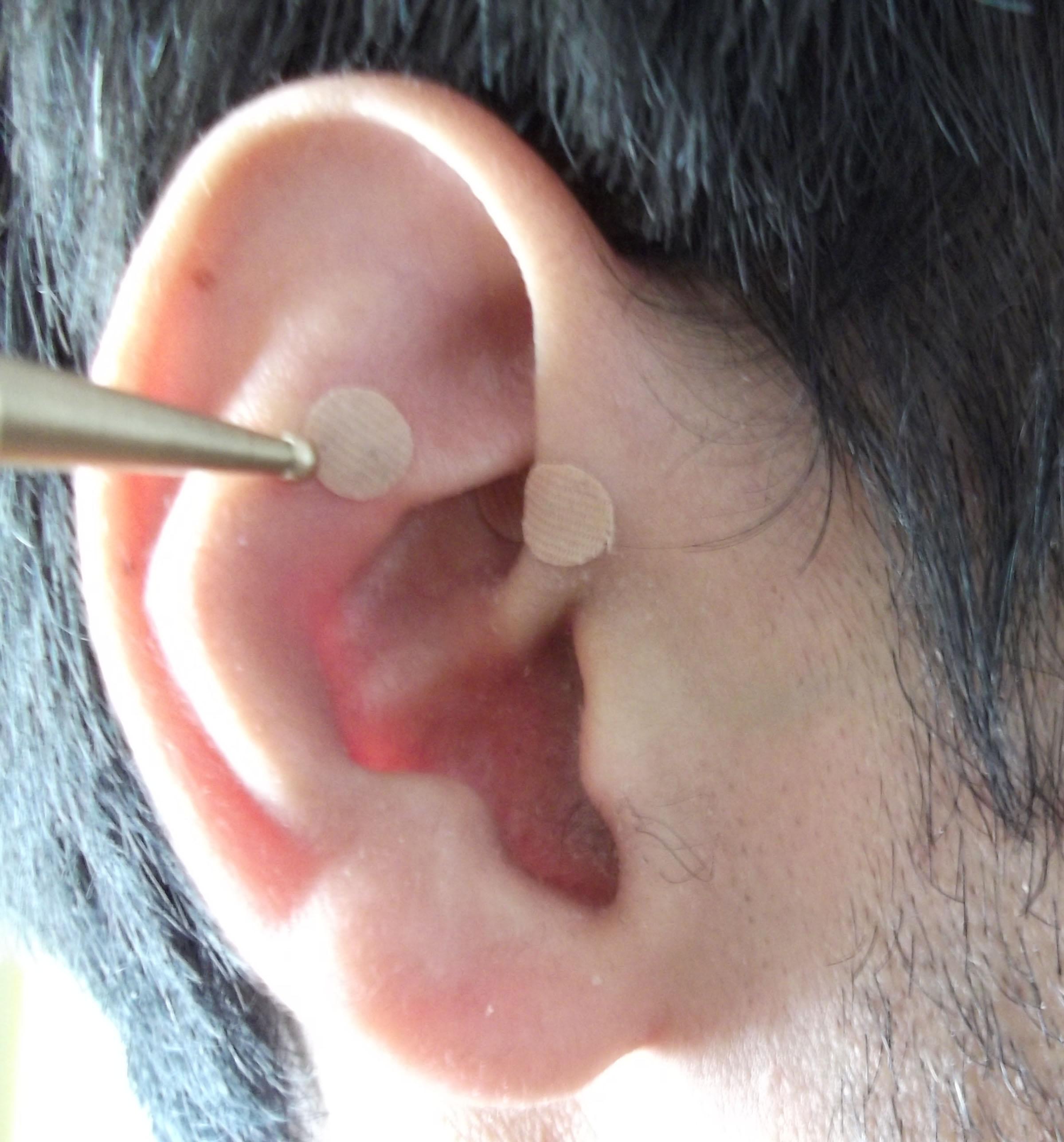Semillas para adelgazar en la oreja